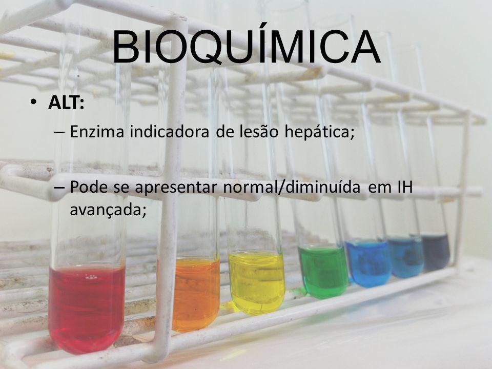 BIOQUÍMICA ALT: Enzima indicadora de lesão hepática;