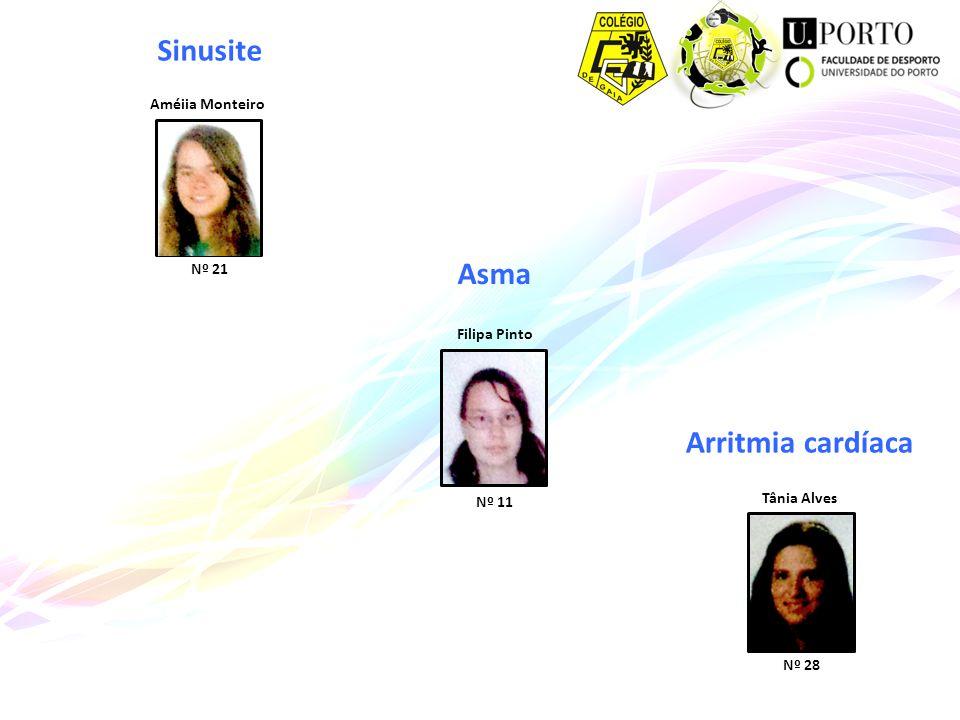 Sinusite Asma Arritmia cardíaca