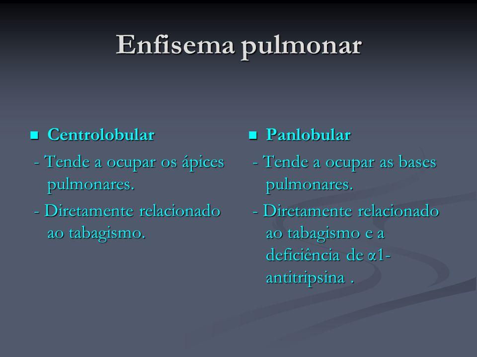 Enfisema pulmonar Centrolobular - Tende a ocupar os ápices pulmonares.