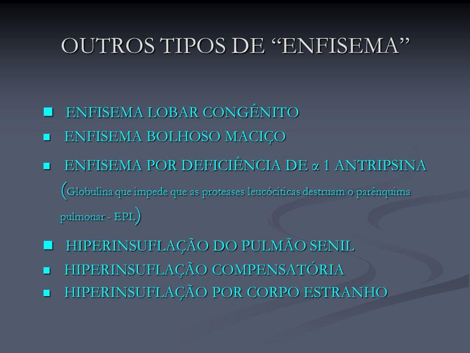 OUTROS TIPOS DE ENFISEMA