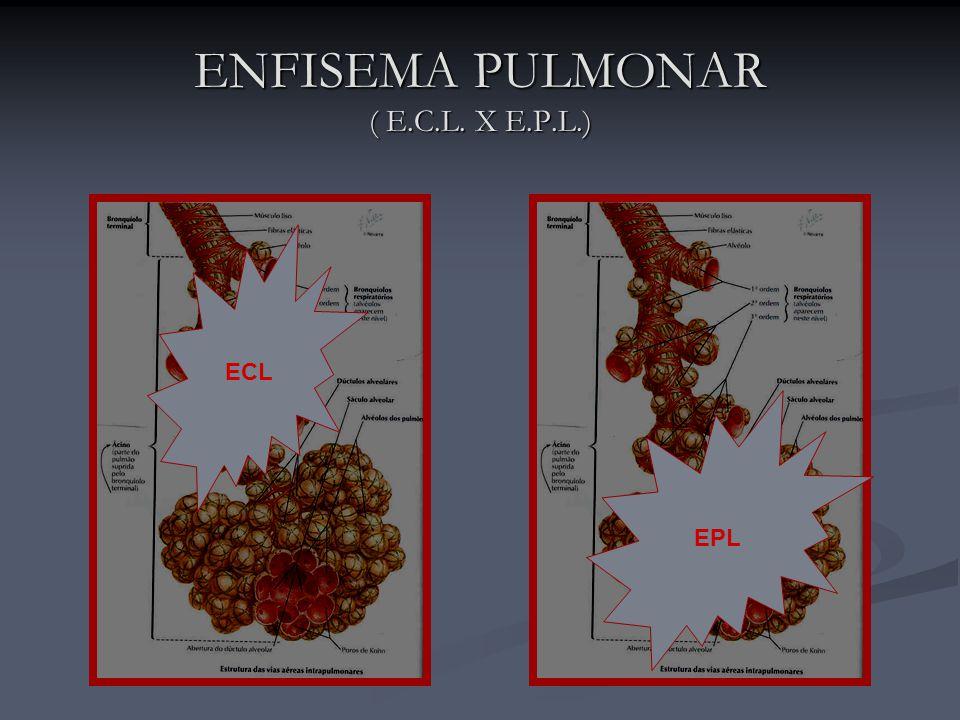 ENFISEMA PULMONAR ( E.C.L. X E.P.L.)