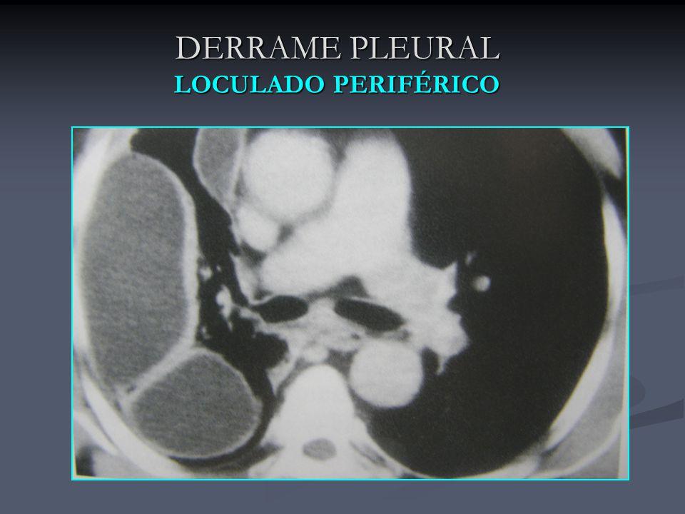 DERRAME PLEURAL LOCULADO PERIFÉRICO
