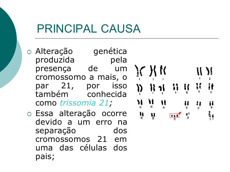 PRINCIPAL CAUSA Alteração genética produzida pela presença de um cromossomo a mais, o par 21, por isso também conhecida como trissomia 21;
