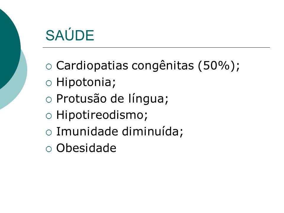 SAÚDE Cardiopatias congênitas (50%); Hipotonia; Protusão de língua;