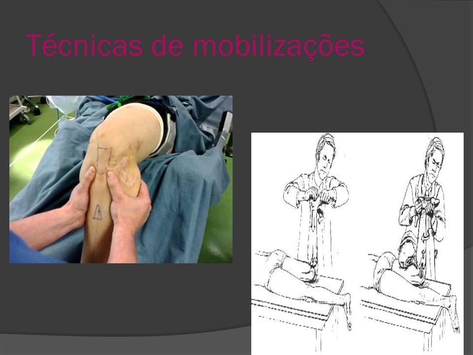 Técnicas de mobilizações