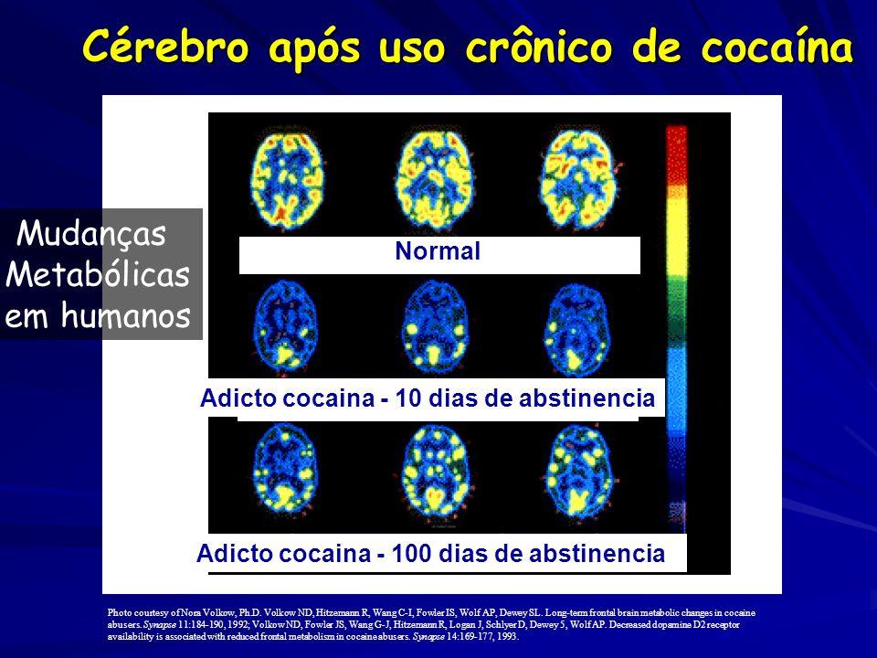 Cérebro após uso crônico de cocaína