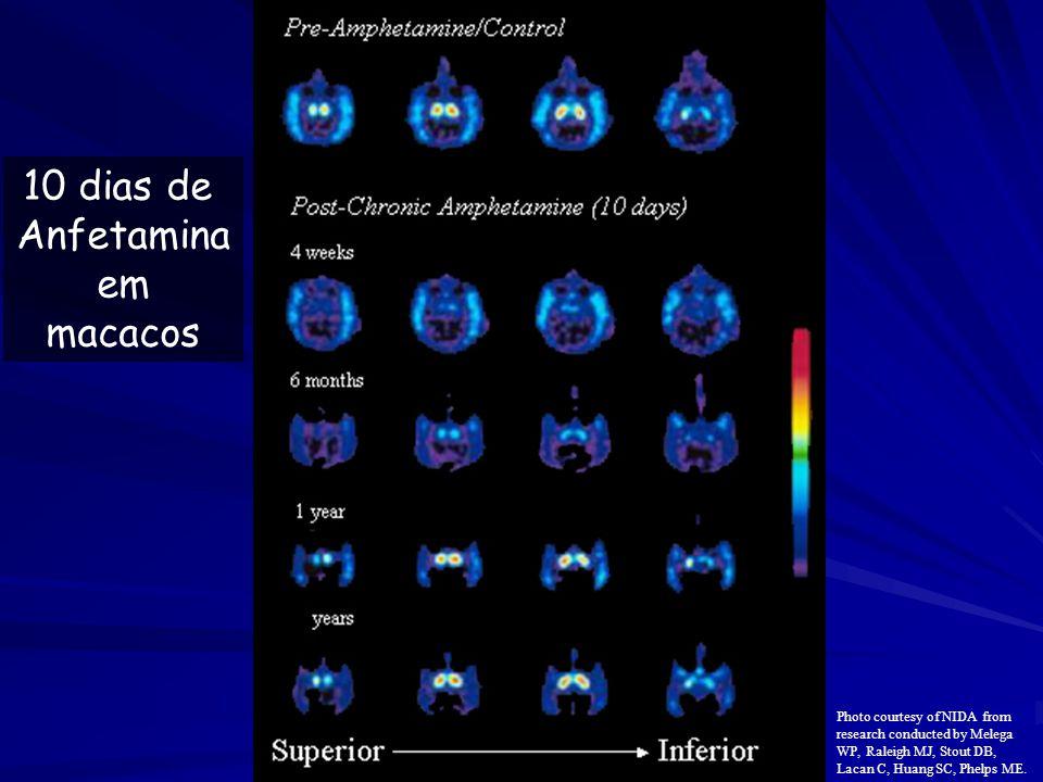 10 dias de Anfetamina em macacos