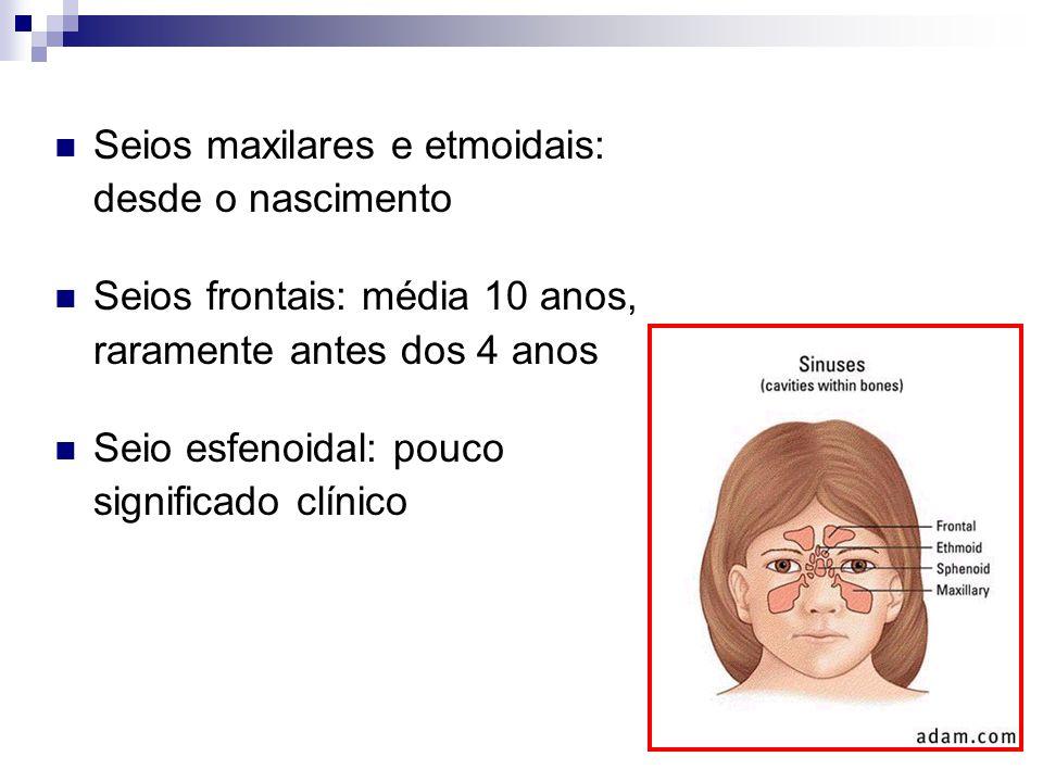 Seios maxilares e etmoidais: desde o nascimento