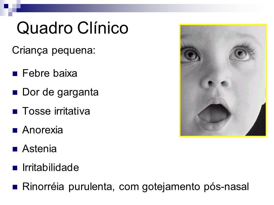 Quadro Clínico Criança pequena: Febre baixa Dor de garganta