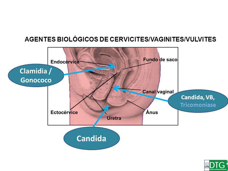 Candida, VB, Tricomoniase