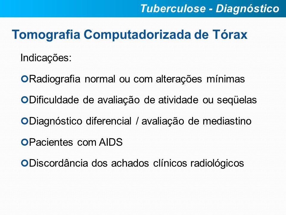 Tomografia Computadorizada de Tórax