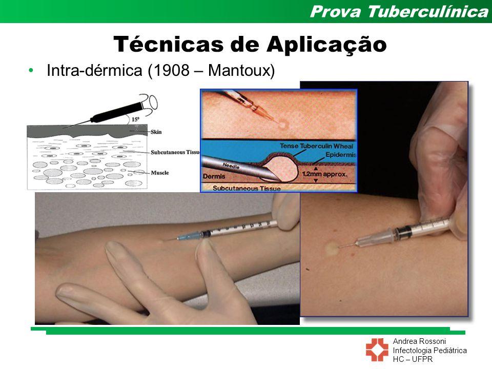 Técnicas de Aplicação Intra-dérmica (1908 – Mantoux)
