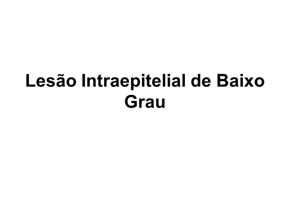 Lesão Intraepitelial de Baixo Grau