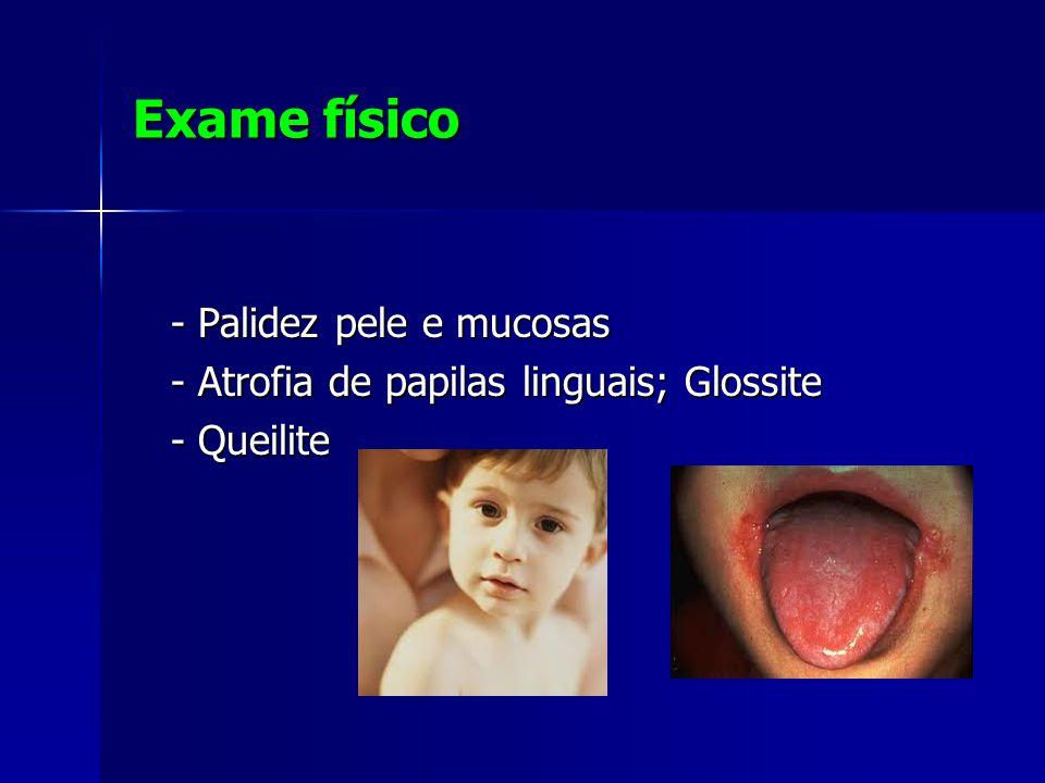 Exame físico - Palidez pele e mucosas