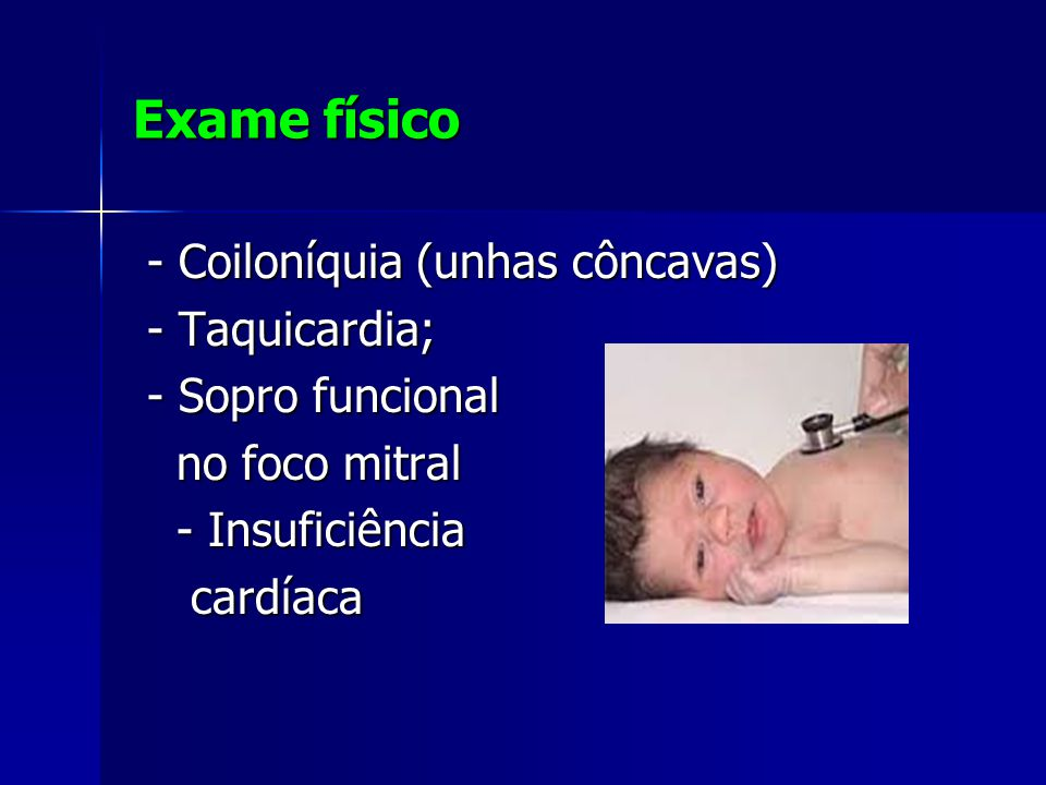 Exame físico - Coiloníquia (unhas côncavas) - Taquicardia; - Sopro funcional no foco mitral - Insuficiência cardíaca