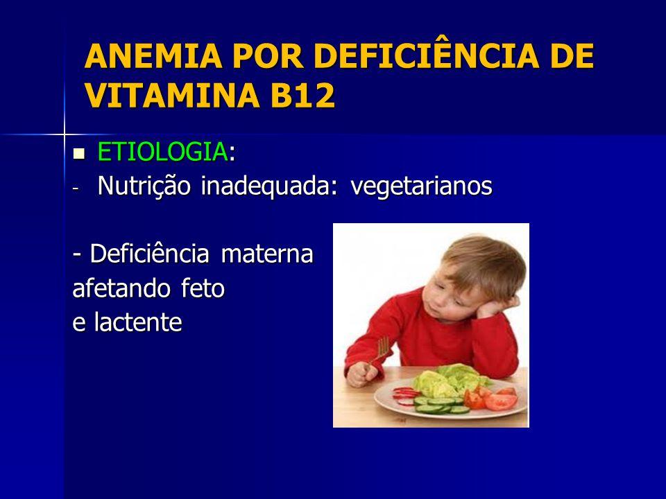ANEMIA POR DEFICIÊNCIA DE VITAMINA B12