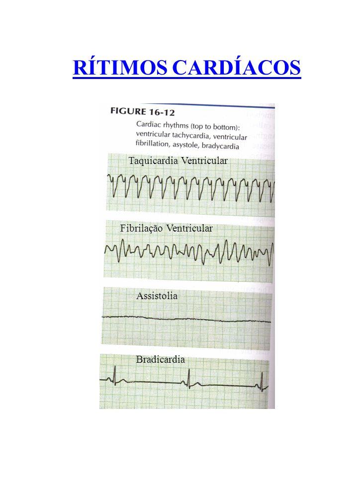 RÍTIMOS CARDÍACOS Taquicardia Ventricular Fibrilação Ventricular