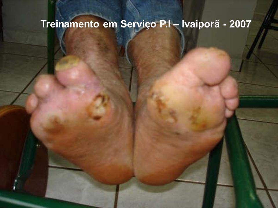 Treinamento em Serviço P.I – Ivaiporã - 2007