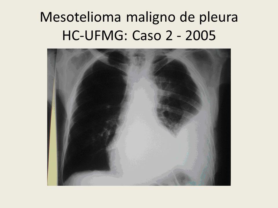 Mesotelioma maligno de pleura HC-UFMG: Caso 2 - 2005