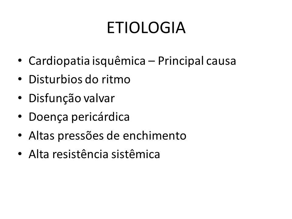 ETIOLOGIA Cardiopatia isquêmica – Principal causa Disturbios do ritmo
