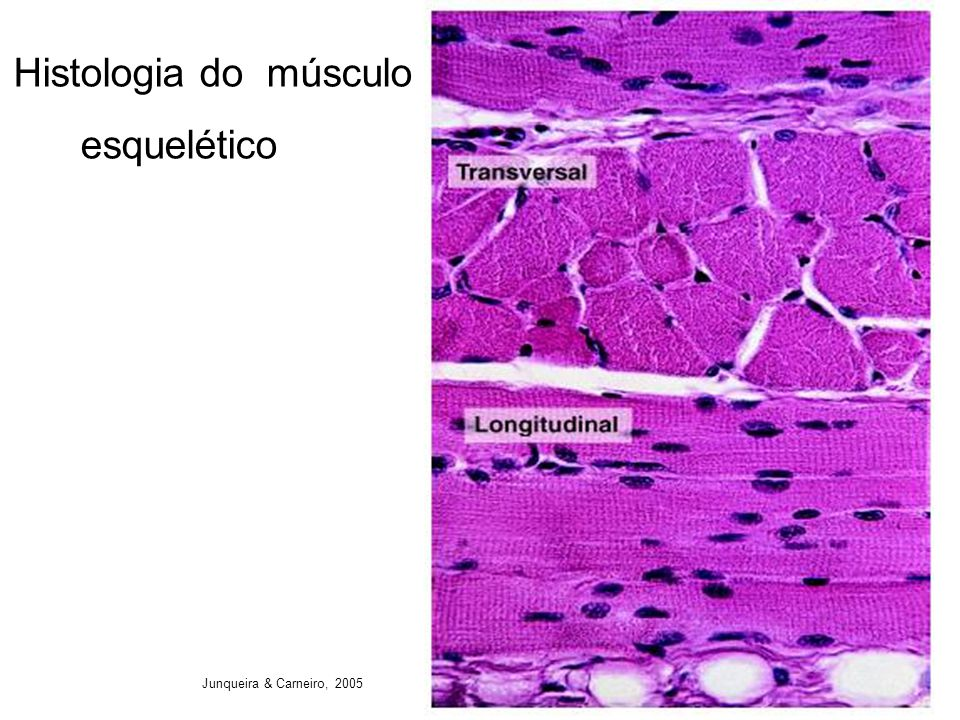 Histologia do músculo esquelético Junqueira & Carneiro, 2005