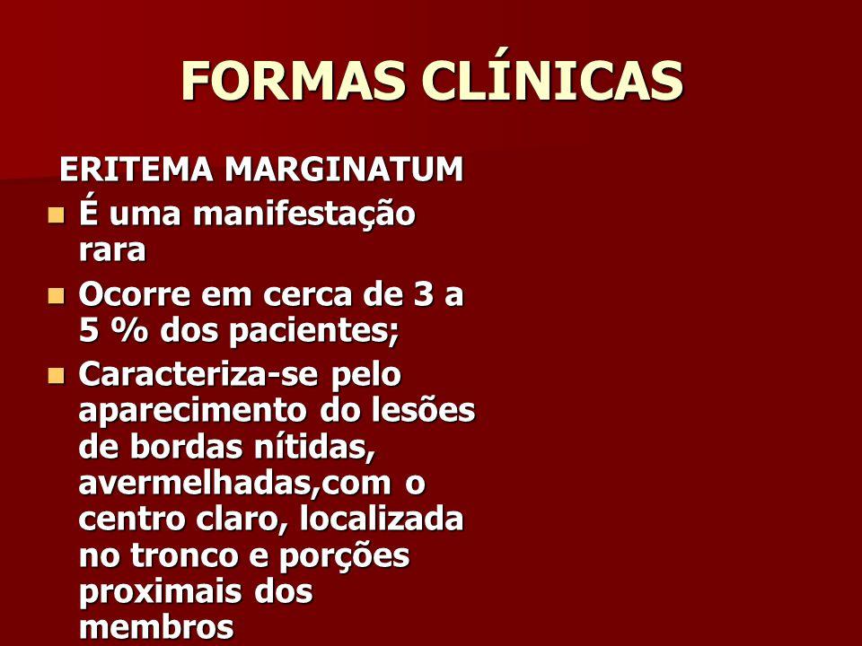 FORMAS CLÍNICAS ERITEMA MARGINATUM É uma manifestação rara