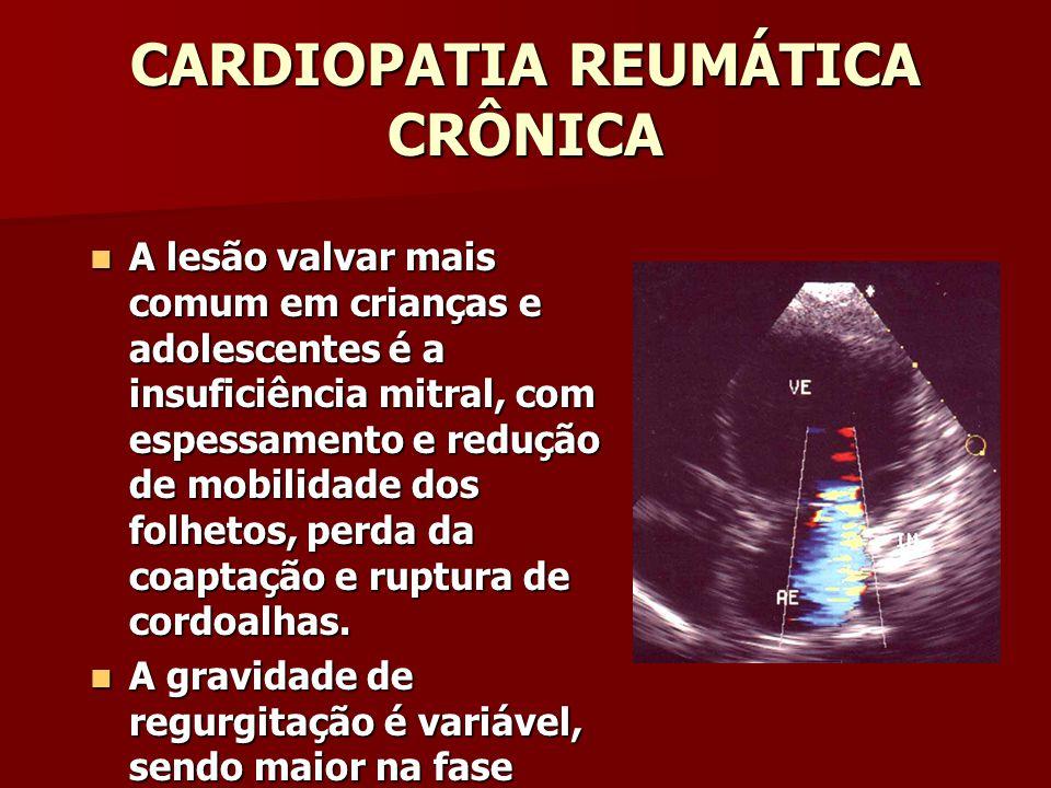 CARDIOPATIA REUMÁTICA CRÔNICA