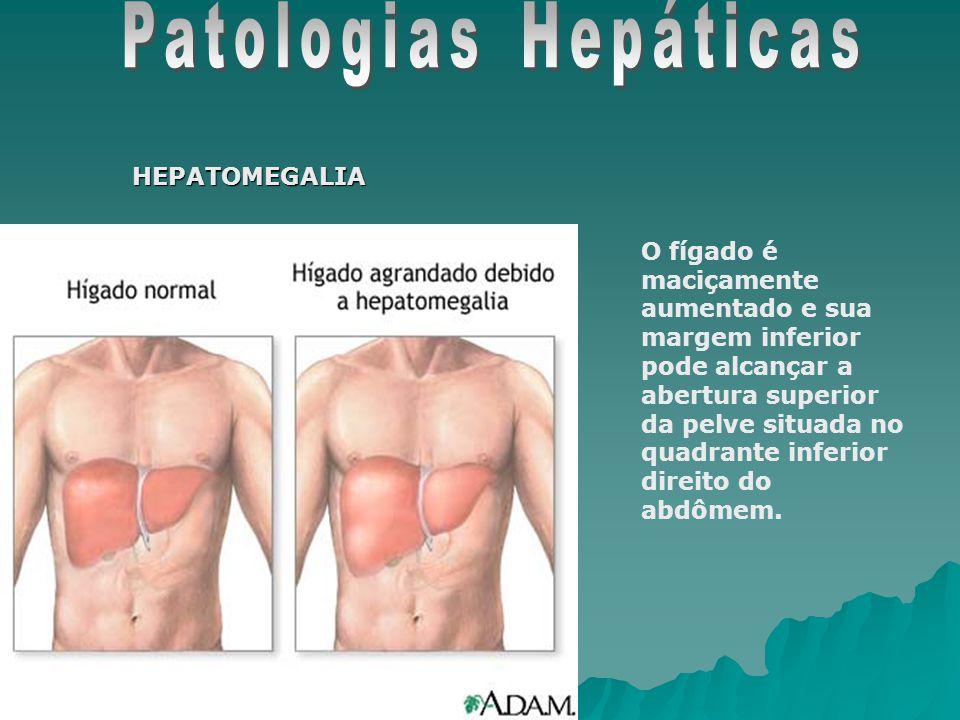 Patologias Hepáticas HEPATOMEGALIA