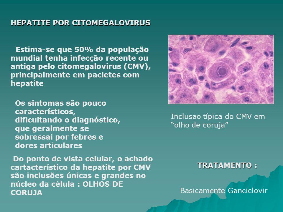 HEPATITE POR CITOMEGALOVIRUS