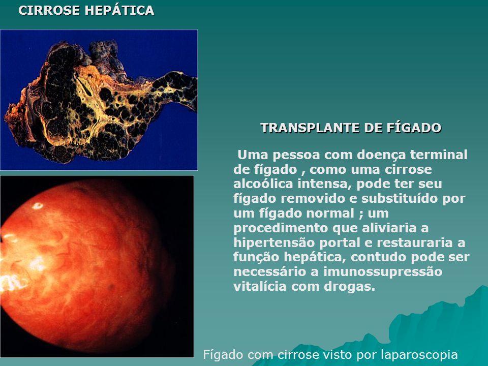 CIRROSE HEPÁTICA TRANSPLANTE DE FÍGADO.