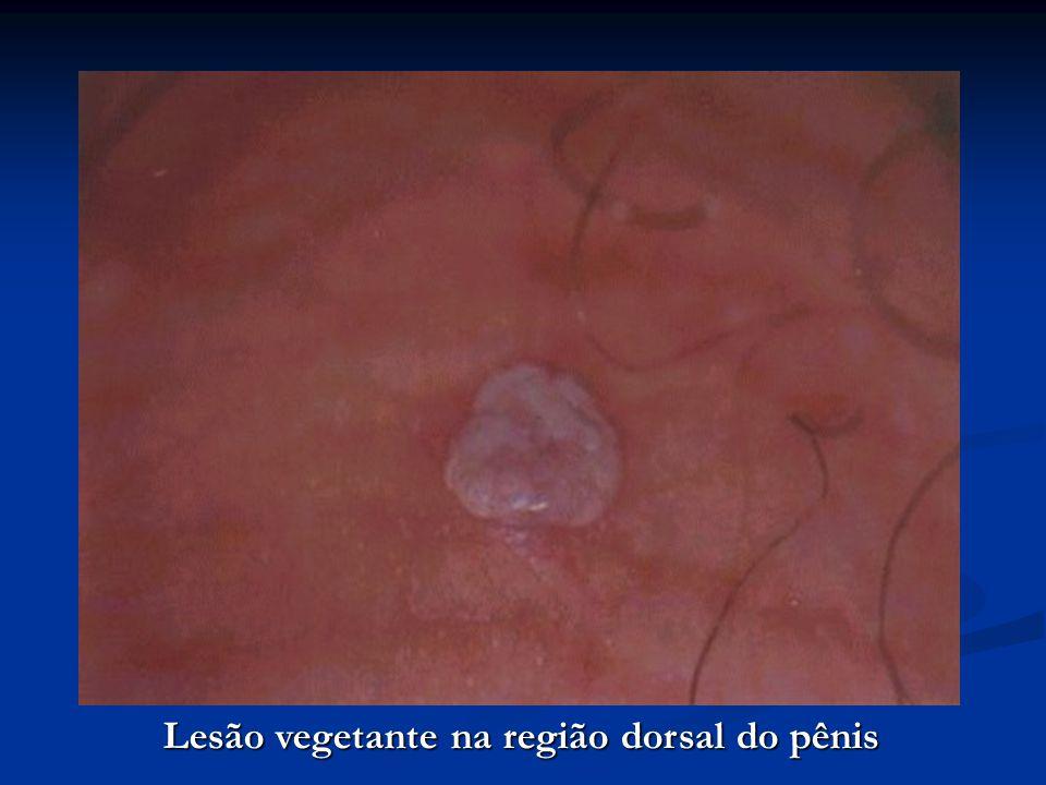 Lesão vegetante na região dorsal do pênis