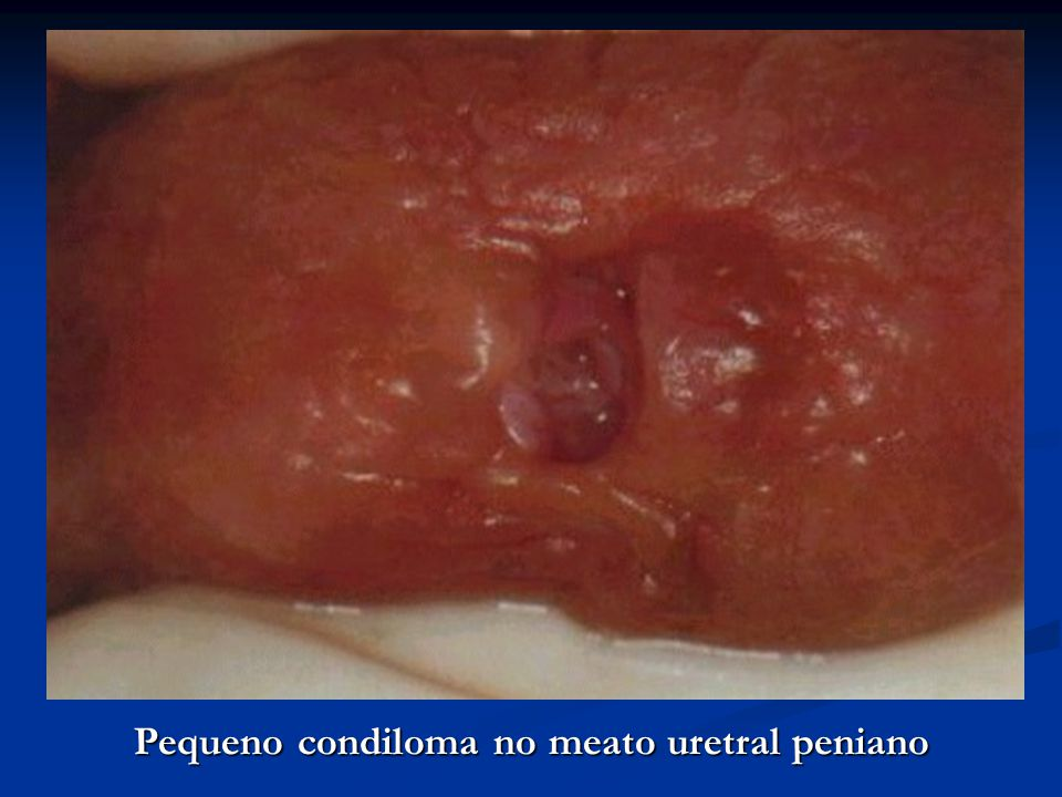 Pequeno condiloma no meato uretral peniano