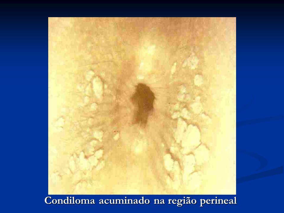 Condiloma acuminado na região perineal