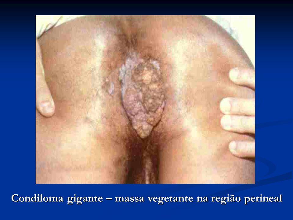 Condiloma gigante – massa vegetante na região perineal