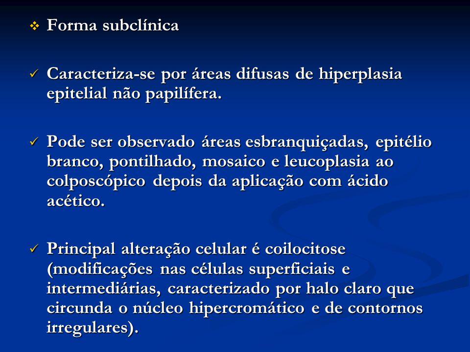 Forma subclínica Caracteriza-se por áreas difusas de hiperplasia epitelial não papilífera.