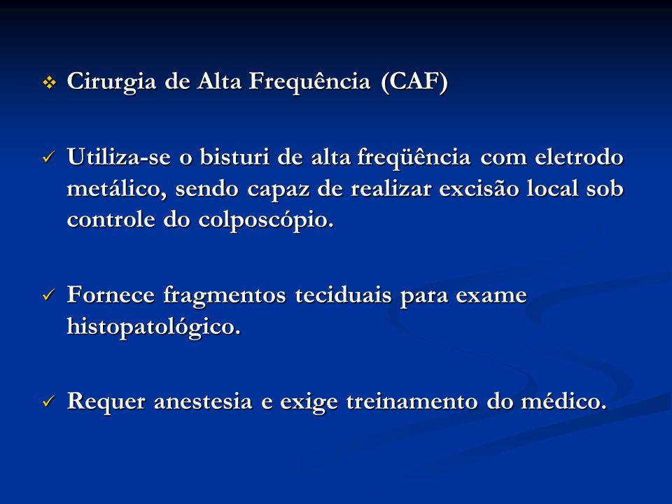 Cirurgia de Alta Frequência (CAF)