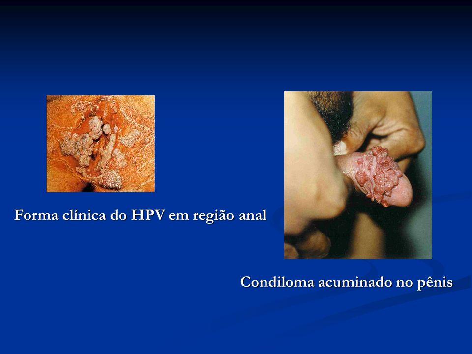 Forma clínica do HPV em região anal