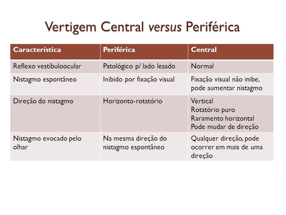 Vertigem Central versus Periférica