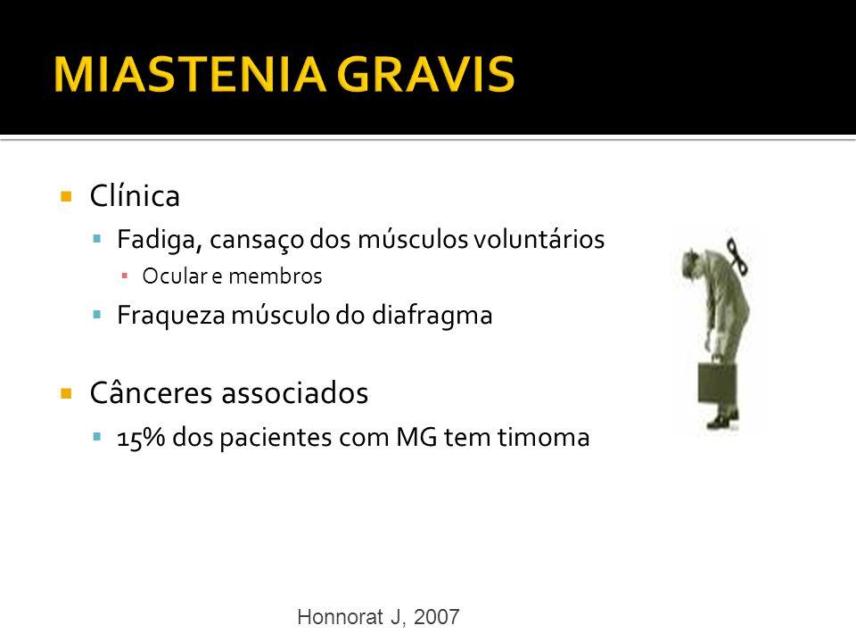 MIASTENIA GRAVIS Clínica Cânceres associados
