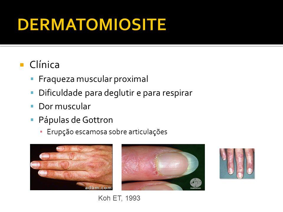 DERMATOMIOSITE Clínica Fraqueza muscular proximal