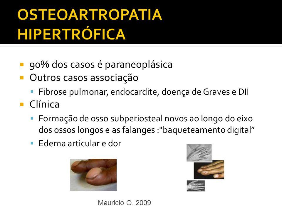 OSTEOARTROPATIA HIPERTRÓFICA