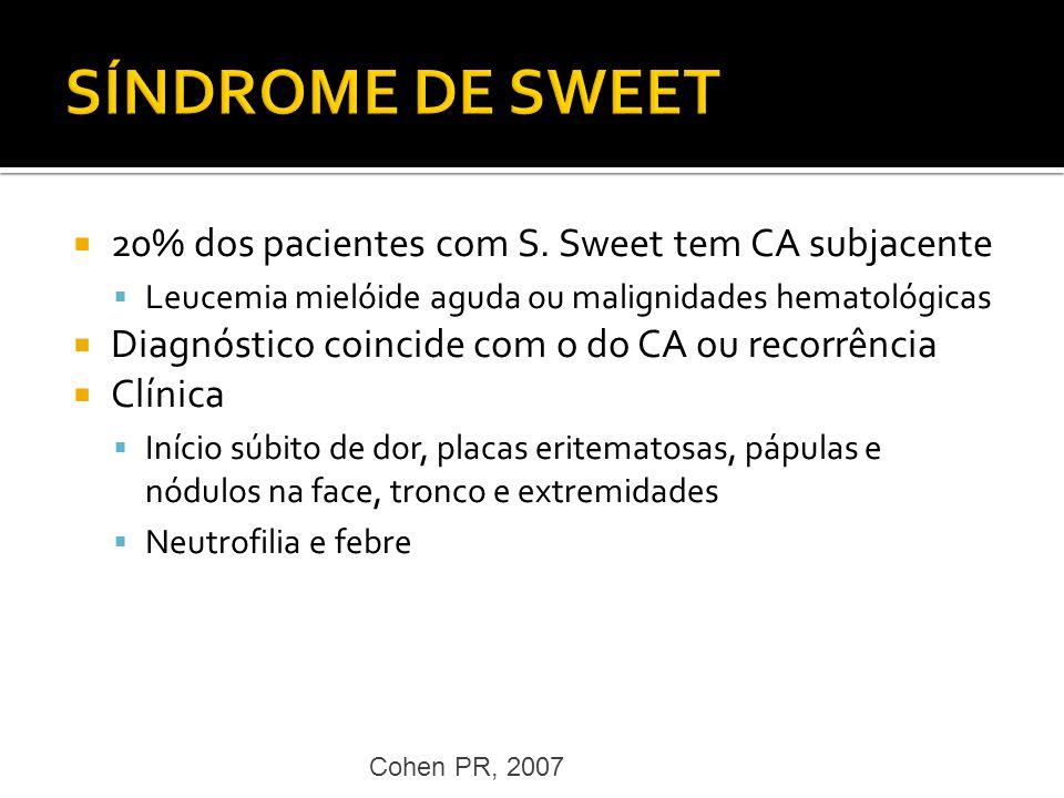 SÍNDROME DE SWEET 20% dos pacientes com S. Sweet tem CA subjacente