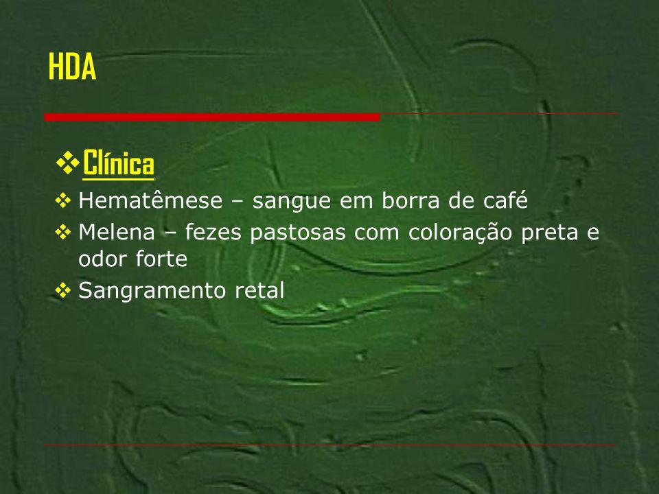 HDA Clínica Hematêmese – sangue em borra de café
