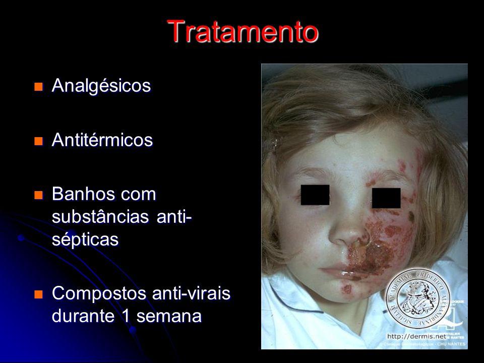 Tratamento Analgésicos Antitérmicos