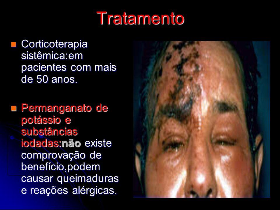 Tratamento Corticoterapia sistêmica:em pacientes com mais de 50 anos.