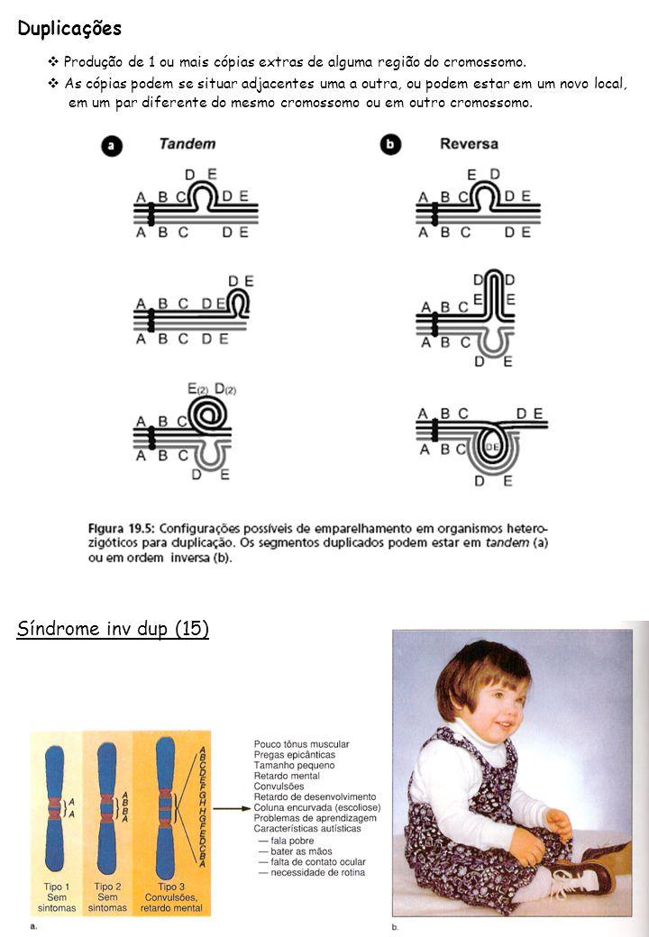 Duplicações Síndrome inv dup (15)