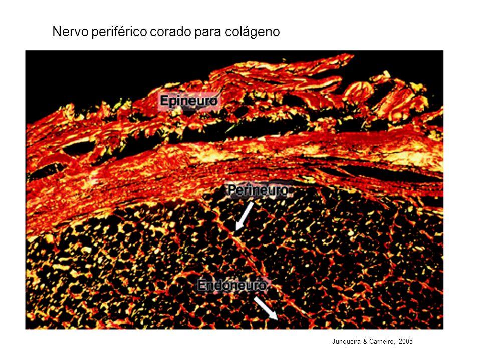 Nervo periférico corado para colágeno