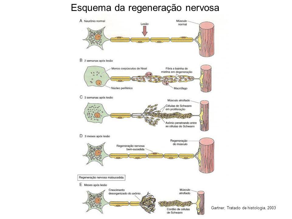 Esquema da regeneração nervosa