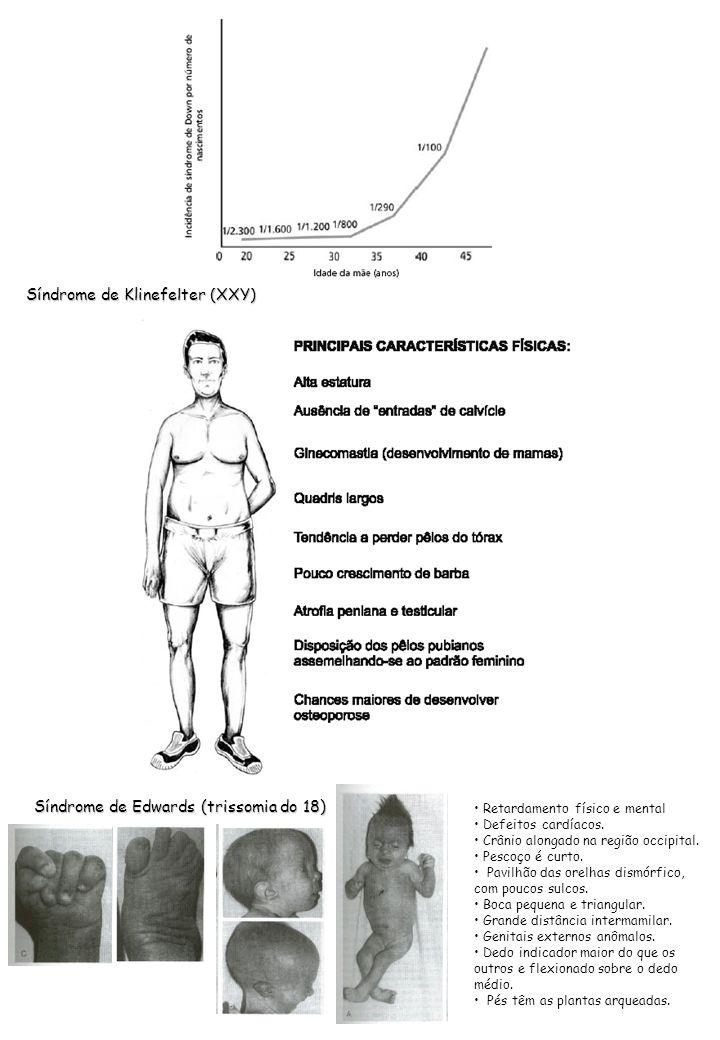 Síndrome de Klinefelter (XXY)