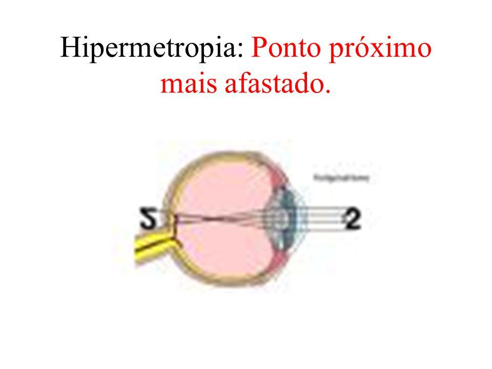 Hipermetropia: Ponto próximo mais afastado.